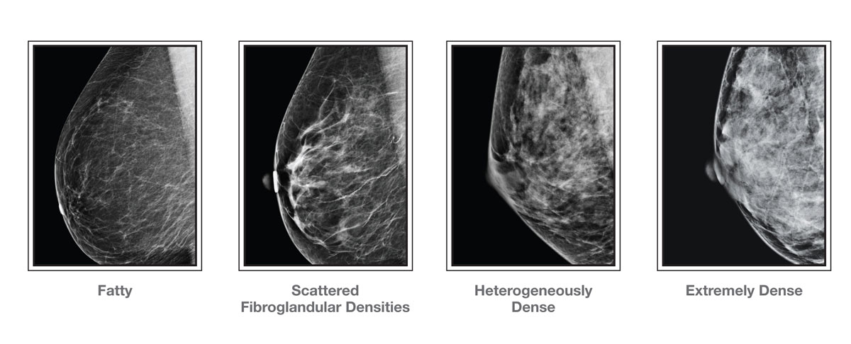 breast density graphic